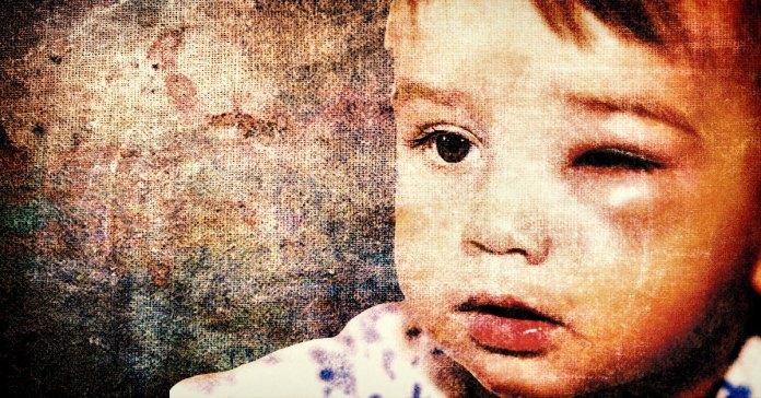 cellulitis in children