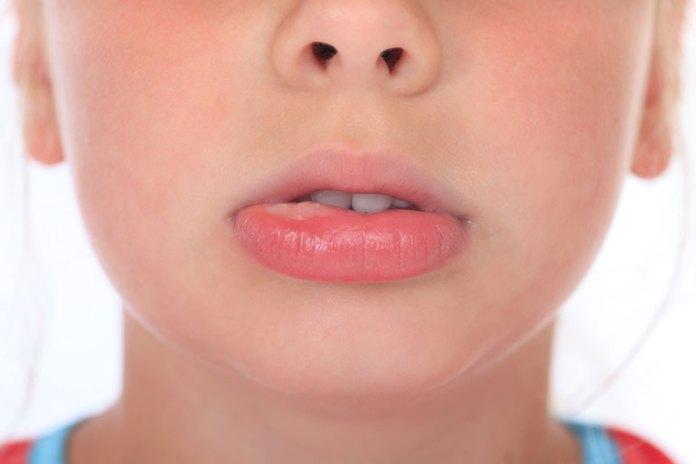 almond milk worsens allergies