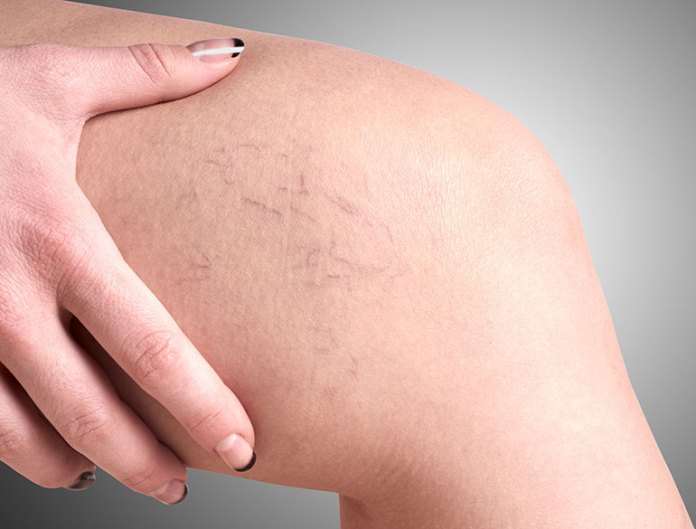 Varicose Veins:Top Ways To Address Common Skin Problems During Pregnancy