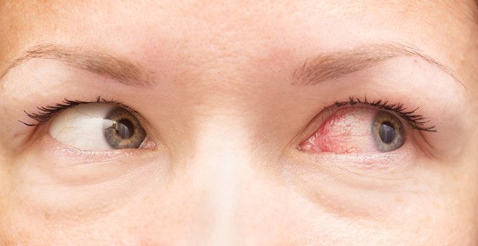 How To Recognize An Allergic Reaction