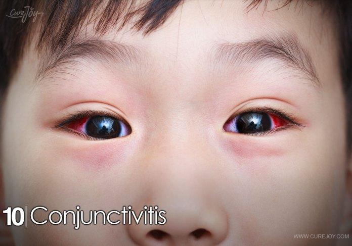 10-conjunctivitis