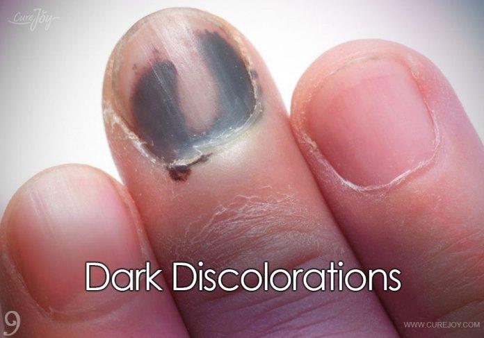 9-dark-discolorations