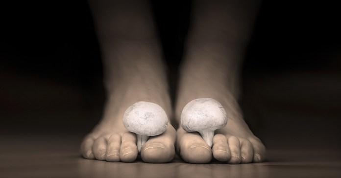 signs of toenail fungus