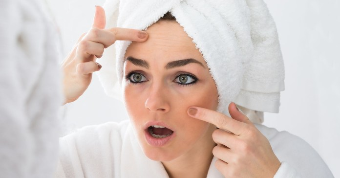 What Your Acne Is Trying to Tell You About Your Health