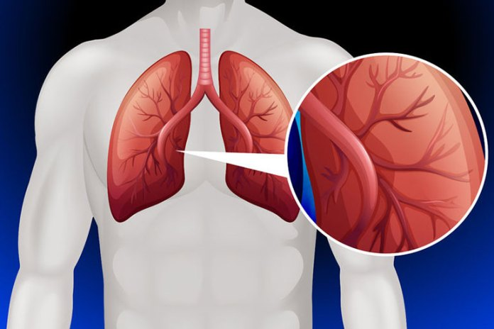Hemp Oil Can Cure Lung Cancer