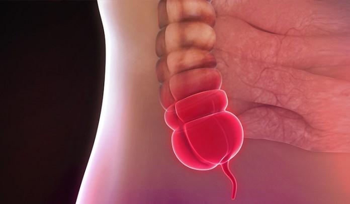 7-appendicitis