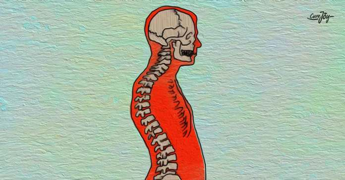 causes of kyphosis
