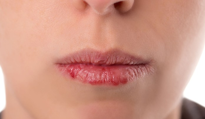 Mouth Breathing Causes Dry Mouth