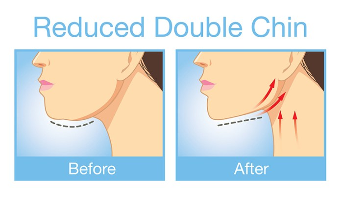 Chin exercises can help reduce double chin
