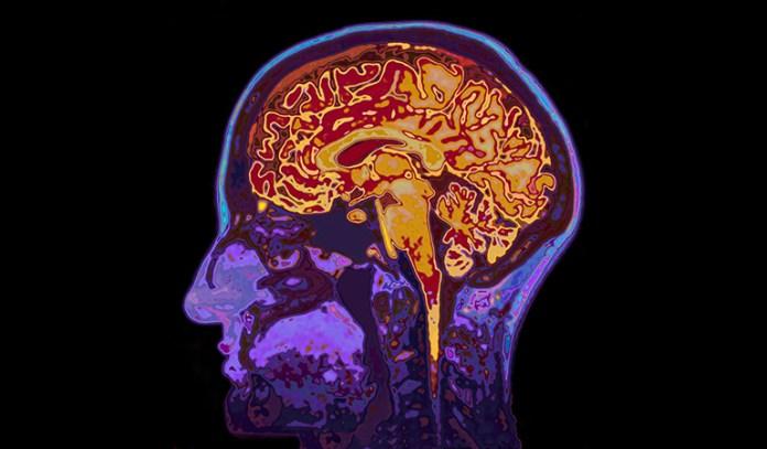 benefits of black currant brain health