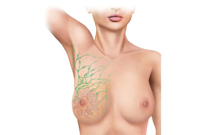 Wearing tight bra leads to lymphatic restriction