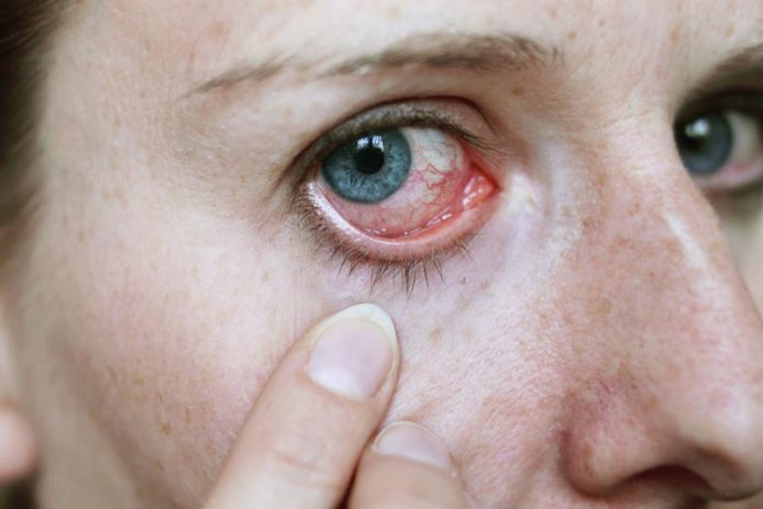 Causes Of Eyebrow Loss You Should Know: Autoimmune Disorders