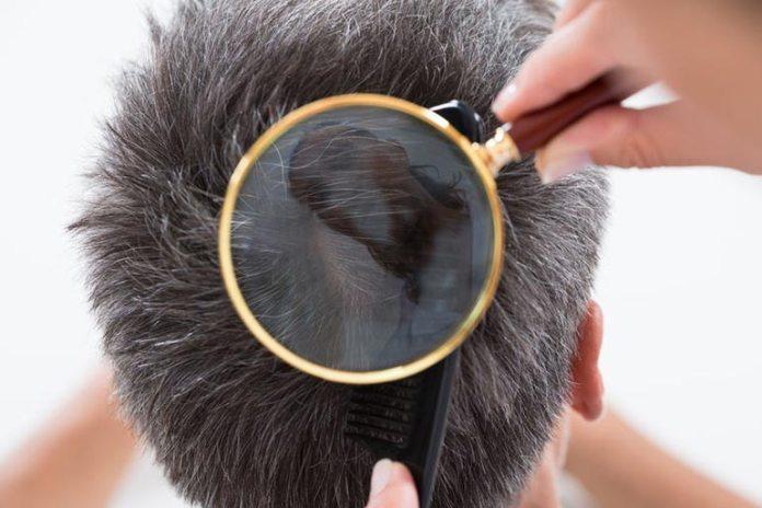 Brahmi-amla hair oil improves scalp health