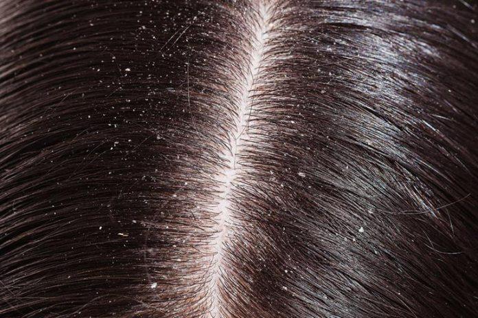 Brahmi-amla hair oil cures dandruff