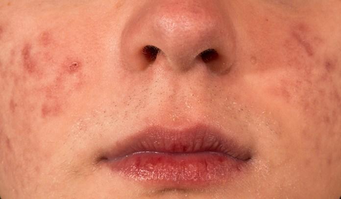 Willow bark prevents acne
