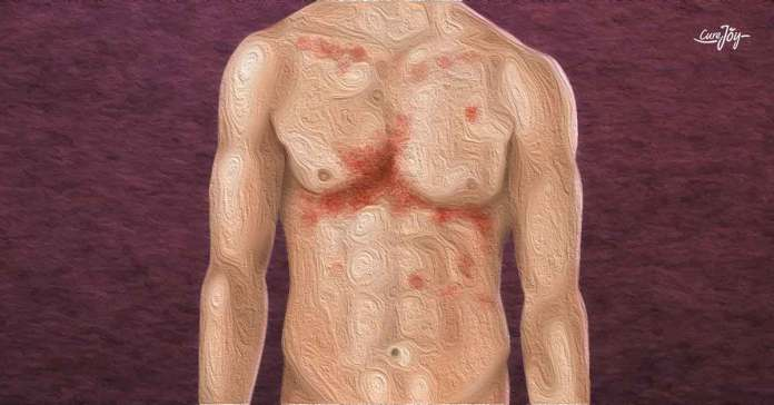 symptoms of typhoid fever