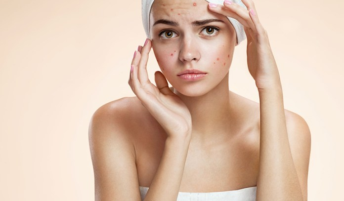 Sunscreen May Result In Worsened Acne