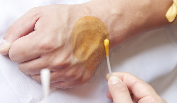 Coconut oil can help wounds heal faster