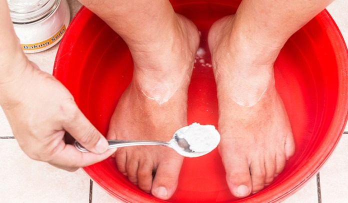 This baking soda infused bath will drain out the excess scaling and help with fungal and bacterial infections