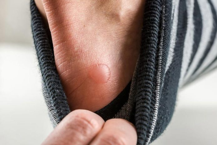 Humans Get Blisters In The Bartonella Infected Areas