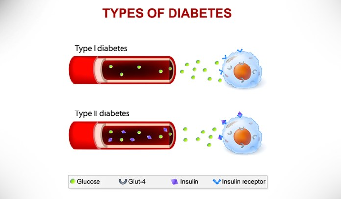 Intermittent Fasting Decreases Blood Glucose, Thus Improving Insulin Levels