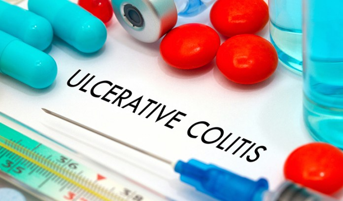 Yellow Stool Can Be Due To Ulcerative Colitis