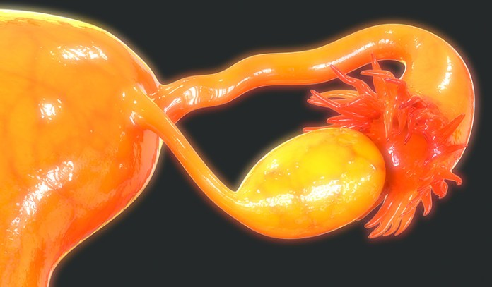 One of the main symptoms of uterine fibroids is a heavy flow of blood during periods.