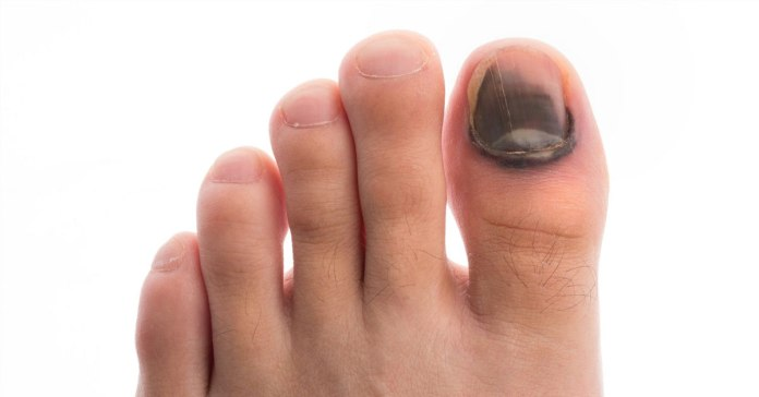 Toe nails can turn black because of various health issues