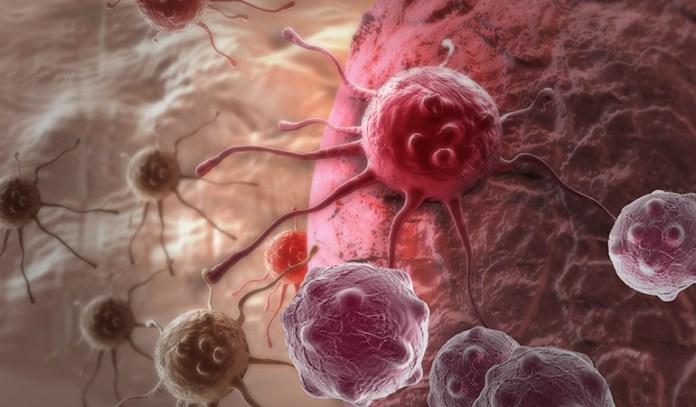 Health Benefits of Bay leaf: Boosts Anti-Cancer Effects