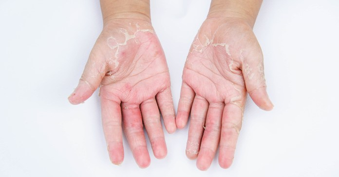 Dry hands are a common problem.