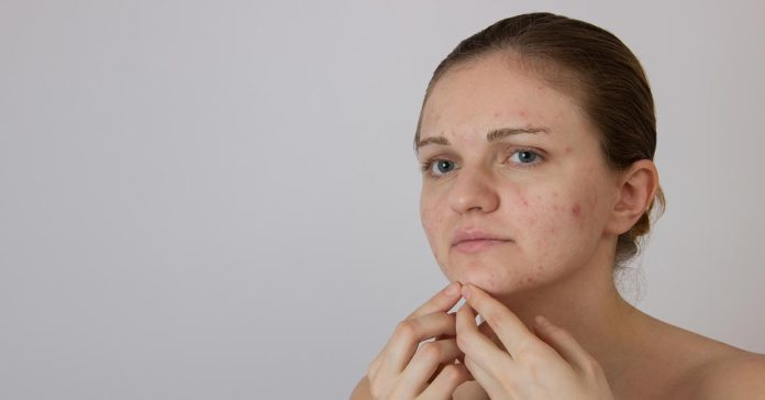 The location of your acne can tell you a lot about your body