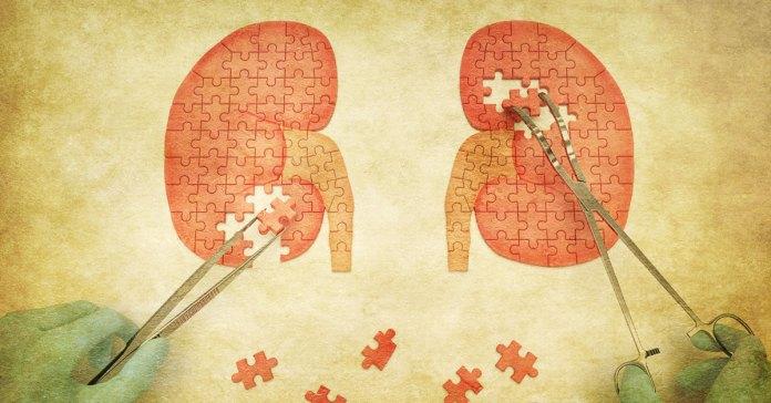Apple Cider Vinegar Good For Kidney Stones