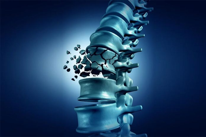 Frequently Getting Your Spine Checked Can Prevent Any Misalignment From Going Undetected