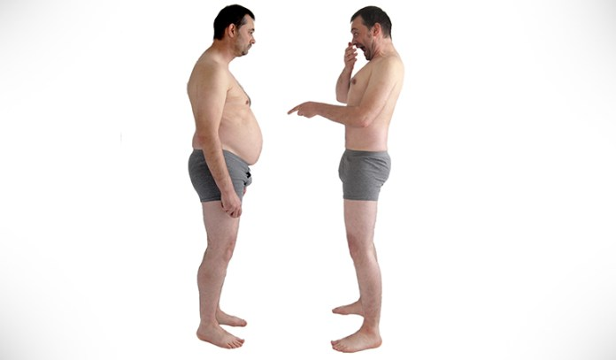 CoolSculpting may sometimes cause paradoxical adipose hyperplasia