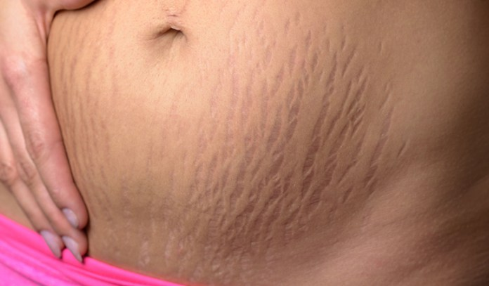 Stretch marks tend to crop up