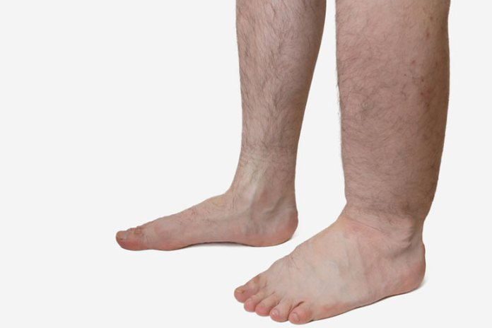 Lack of protein can cause edema