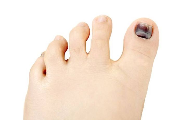 Skin cancer can turn the nail bed underneath the toes black