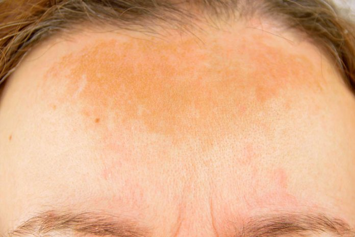 Symptoms Of Hair Dye Allergies: An Allergic Reaction