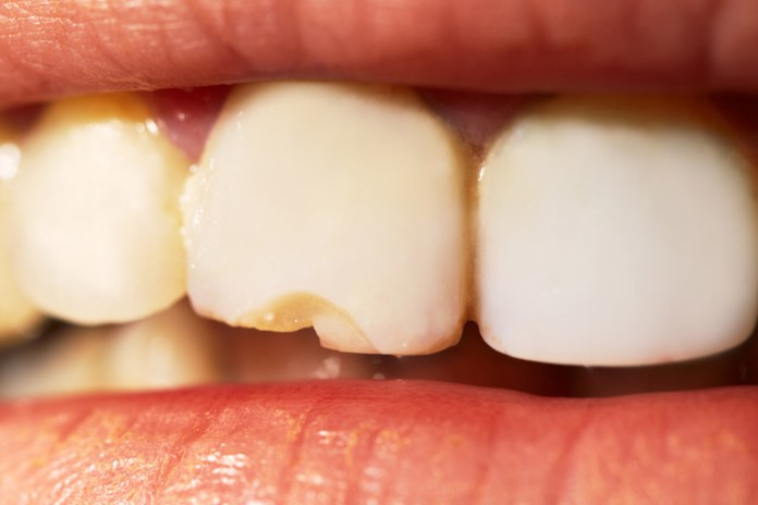 Mouth Exposure To Digestive Acids Makes Teeth Yellow And Brittle In Bulimic People