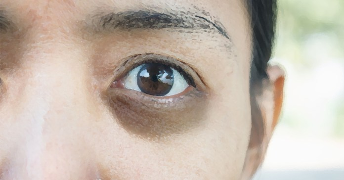 Dark eye circles can be treated with rosewater