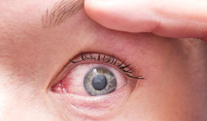 Watch Out For Symptoms Like Excessive Discharge From Your Eyes, A Bleeding Eyelid Bump, And A Crusty Eyelid As They May Be Causes For Concern