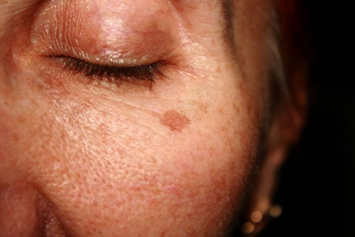 A Lemon-Strawberry Mask Works Great For Age Spots