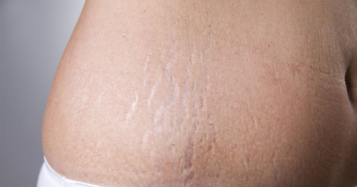 Stretch marks can be easily treated with egg whites