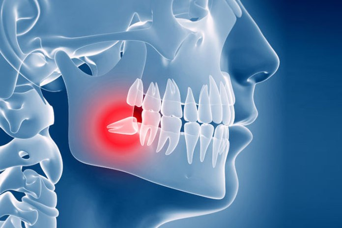 Wisdom teeth only need to be removed if they are misaligned.