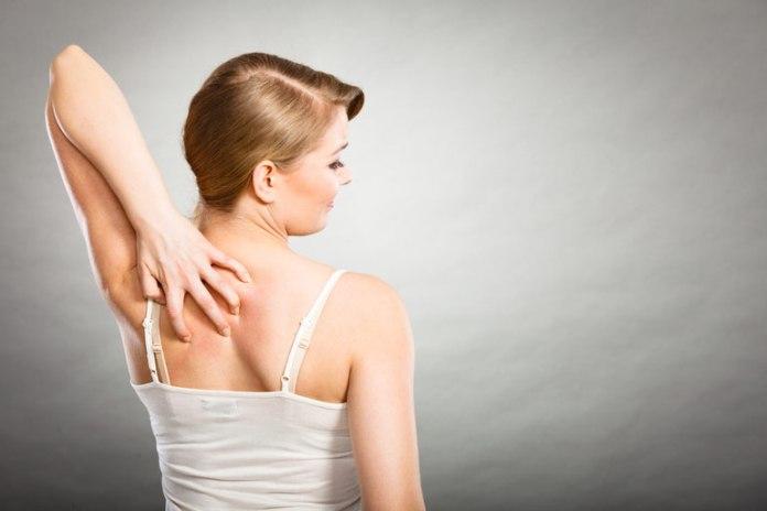 Rashes Are A Common Symptom Of STARI