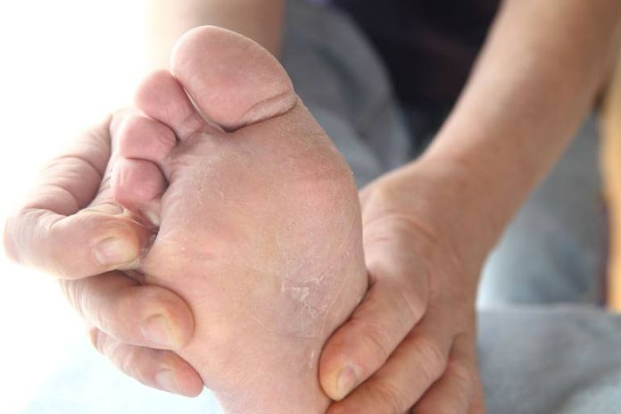 Coconut oil is a useful foot care lotion
