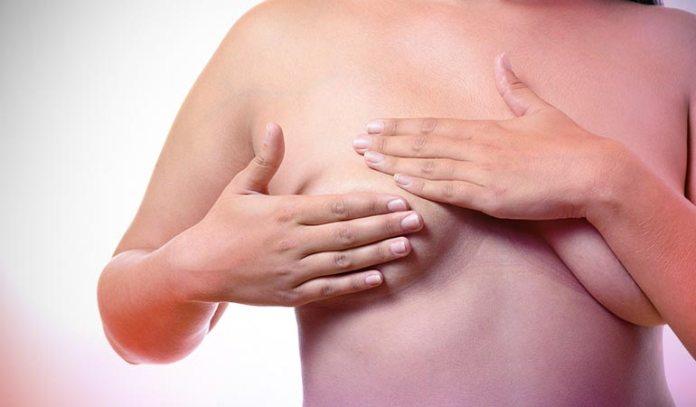 Breast Self Exammination