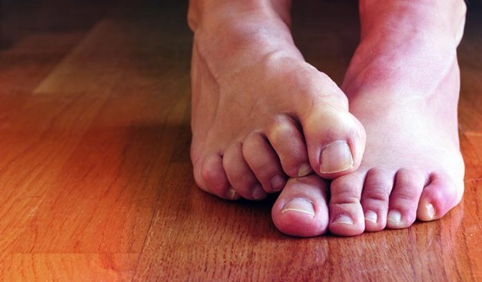 (Athlete's foot is a highly contagious)