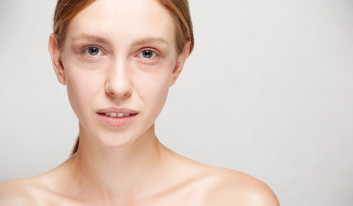 Dark circles can be due to age, genetic predisposition, or injuries