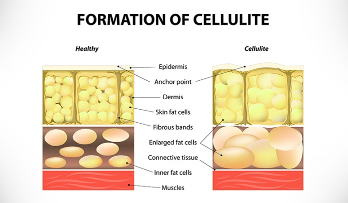 The major cause of cellulite is repeated tissue tension and stretching